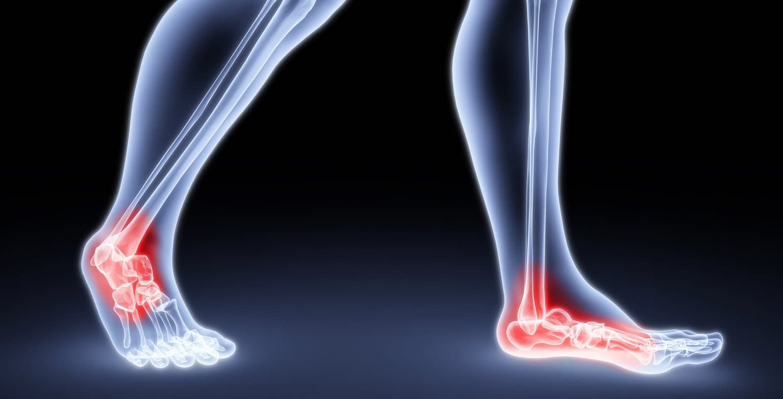 Ankle Sprain Problem and Recovery Solutions